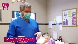جایگزینی دندان از دست رفته | کلینیک دندانپزشکی بیمارستان بهمن