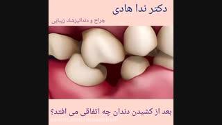 بعد از کشیدن دندان چه اتفاقی می افتد؟