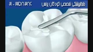 قبل از بحرانی شدن وضعیت دندان, نسبت به ترمیم دندان اقدام کنید