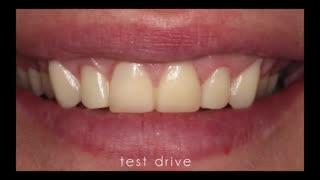 طراحی لبخند دیجیتال|کلینیک دندانپزشکی مدرن