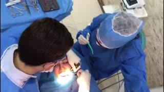 کاشت دندان بدون برش لثه|کلینیک دندانپزشکی مدرن
