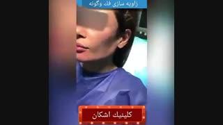 تزریق ژل به گونه و صورت