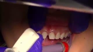 اصلاح طرح لبخند با لمینت|کلینیک دندانپزشکی مدرن