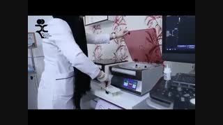 آشنایی با پلاسمای غنی از پلاکت (پی آرپی) در دردهای آرتروز و اسکلتی عضلانی