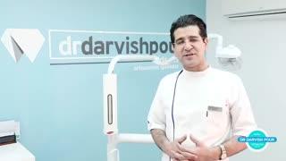 کشیدن دندان عقل در حین درمان ارتودنسی