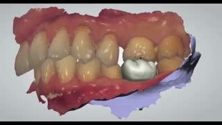 کاشت دیجیتالی دندان|کلینیک دندانپزشکی مدرن