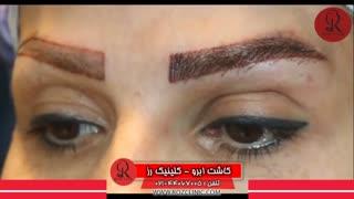 کاشت ابرو   فیلم کاشت ابرو   کلینیک پوست و مو رز   شماره 37