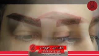کاشت ابرو   فیلم کاشت ابرو   کلینیک پوست و مو رز   شماره 38