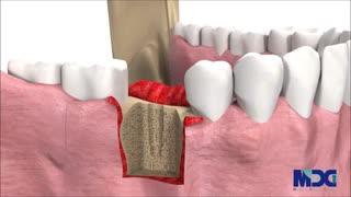 مراحل انجام کاشت دندان