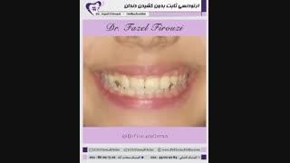 ارتودنسی بدون کشیدن دندان   دکتر فیروزی