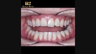 اصلاح طرح لبخند | دکتر عطایی