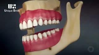 تحلیل ریشه ی دندان | دکتر لیلا عطایی