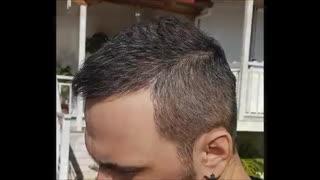 مراحل پیشرفت و رشد کاشت مو از صفر تا 12 ماه