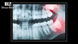 دندان عقل | دکتر لیلا عطایی