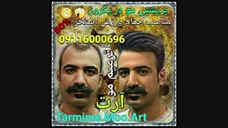 پروتز مو - دوست خوبمون از تهران