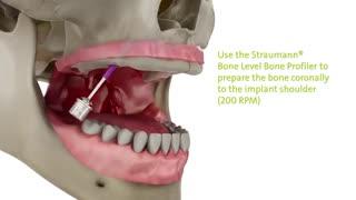 کاشت دندان کامل|کلینیک دندانپزشکی مدرن