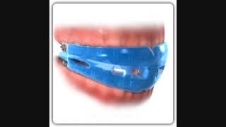 محافظ دندان در ارتودنسی | دکتر قریشی