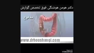 عوارض یبوست چیست؟