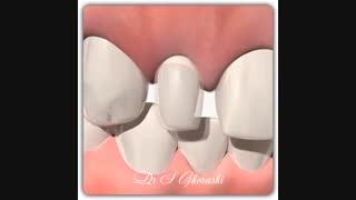کامپوزیت دندان | دکتر سعید قریشی