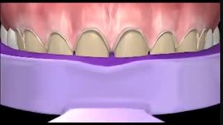 مراحل کلی لمینیت دندان در دندانپزشکی زیبایی|کلینیک دندانپزشکی مدرن