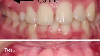 فیلم نمونه های ارتودنسی دو فک|کلینیک دندانپزشکی مدرن