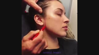 مراحل قبل از زاویه سازی صورت | کلینیک زیبایی تسنیم