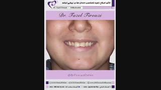 درمان ارتودنسی   دکتر فیروزی