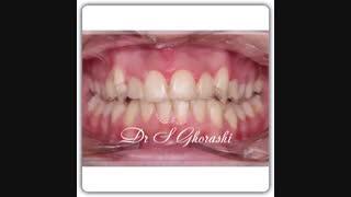 نامرتبی دندان | دکتر سعید قریشی