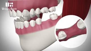 دندان از دست رفته | دکتر لیلا عطایی