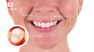 پوسیدگی دندان | دکتر عطایی