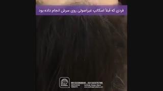 ریمو اسکالپ غیراصولی در مرکز ایران اسکالپ