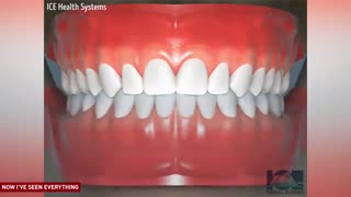 درمان های مختلف ارتودنسی به صورت انیمیشن|کلینیک  دندانپزشکی مدرن