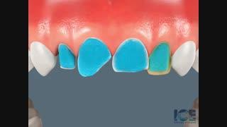 درمان لمینیت به صورت انیمیشن|کلینیک دندانپزشکی مدرن