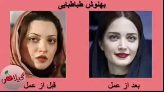 تصاویر قبل و بعد از عمل زیبایی بازیگران ایرانی2019