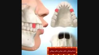 درمان جلو بودن دندان های بالا