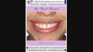 فاصله بین دندان ها   دکتر فیروزی