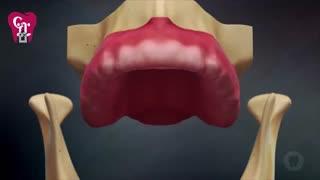 پروتز بر پایه ایمپلنت | کیلینیک دندانپزشکی بهمن