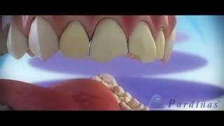 ونیر | کلینیک دندانپزشکی تاج