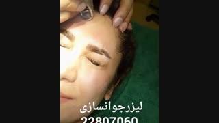 لیزر جوانسازی - کلینیک زیبایی پری سیما - 22807060
