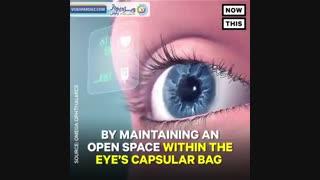 Omega Ophthalmics پلتفرم ایمپلنت چشم با قدرت واقعیت افزوده