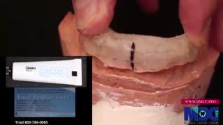 معرفی تکنیک دایرکت ونیر کامپوزیت|کلینیک دندانپزشکی مدرن
