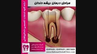 مراحل درمان ریشه دندان | بیمارستان بهمن