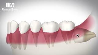 دندان های عقل و مشکلات آن ها | دکتر لیلا عطایی