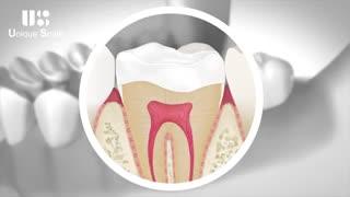 ترمیم دندان آسیب دیده | دکتر لیلا عطایی