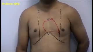 Surface Anatomy of thorax