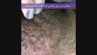 اسکالپ سر برای کاشت مو به روش FIT