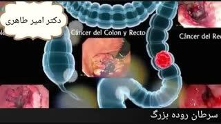 سرطان روده بزرگ | دکتر امیر طاهری