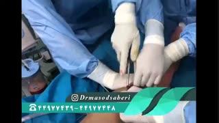 وسایل عمل در جراحی رباط صلیبی چه کاربردی دارند؟