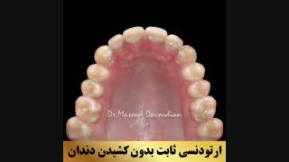 بهترین دکتر ارتودونسی تهران | دکتر داوودیان
