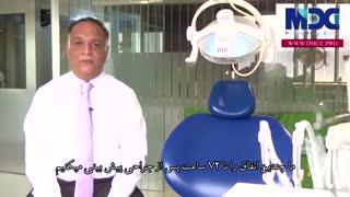 درد بعد از کاشت ایمپلنت|کلینیک دندانپزشکی مدرن